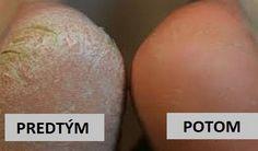 Suché apopraskané päty môžu byť pomerne nepríjemným zdravotným problémom. Niekedy dokonca aj bolestivým. Našťastie, existuje jeden prírodný spôsob, ktorý vám stým dokáže pomôcť. Navyše, je veľmi jednoduchý aponúka nanajvýš dobré výsledky. Účinky sódy bikarbóny na pokožku chodidiel Sóda bikarbóna má silné antiseptické účinky, ktoré liečia