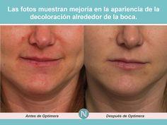 Las fotos muestran mejoría en la apariencia de la decoloración alrededor de la boca.