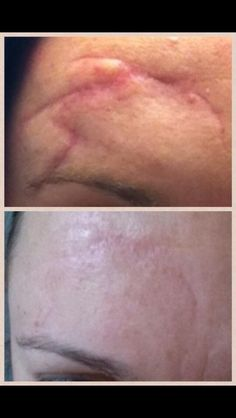 This ranks right up there with my all time favorite Nerium before/after photos. This is after only ONE month and ONE bottle of Nerium AD. Nerium International, Best Anti Aging, Anti Aging Skin Care, Nerium Pictures, Nerium Results, Anti Aging Night Cream, Acne Scar Removal, Before After Photo, Uneven Skin