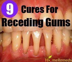 9 Natural Cures For Receding Gums