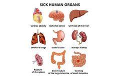 Realistic sick human organs set. Human Icons