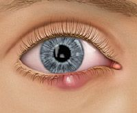 Natural remedies for healing a stye in one day!