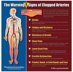clogged arteries remedies heart disease