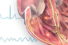 Ventricular Fibrillation Caused by Mianserin Poisoning
