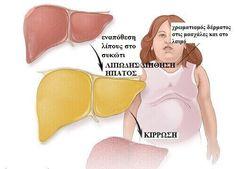 Έχετε λίπος στο συκώτι; Μάθετε περισσότερα εδώ!