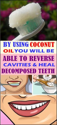 BY USING COCONUT OIL YOU WILL BE ABLE TO REVERSE CAVITIES & HEAL DECOMPOSED TEETH Dental Health, Oral Health, Dental Care, Health Tips, What Causes Tooth Decay, Reverse Cavities, Remedies For Tooth Ache, Coconut Oil For Teeth, Heal Cavities