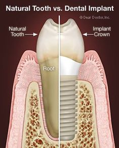 Dental Implants - Your Best Option for Replacing Missing Teeth | Dear Doctor