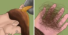 Solid Guide On How To Prevent Hair LossIf you want to understand and even manage your hair loss, you need to educate yourself about it. Losing most of your hair Hair Loss Causes, Prevent Hair Loss, Hair No More, Male Pattern Baldness, Stop Hair Loss, Hair Loss Women, Hair Loss Remedies, Hair Repair, Hair Loss Treatment