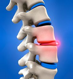 Irritation of intervertebral discs accounts for up to 80% of low back pain. Repetitive spinal flexion is the most common cause...all the more reason to get up and move!