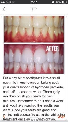 How To White Teeth At Home. #Beauty #Trusper #Tip