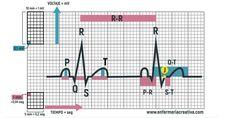 El electrocardiograma (ECG) es el registro de las señales eléctricas de las células miocárdicas, ese gran desconocido que en ocasiones visualizamos cada día y cuanto más lo miramos menos vemos. Por…
