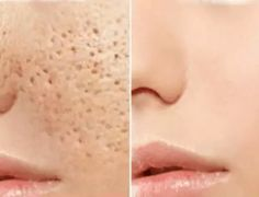 AMAZING RESULTS: 3 Days and All Open Pores Will Disappear from Your Skin Forever!