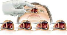 debarrassez-vous-naturellement-des-allergies-et-des-polypes-nasaux