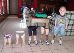 Growing up!  Prosthetic Legs Through The Years  This little guy had his legs amputated at birth and has been using prosthetic ones since.