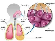 Asbestos and your Lungs - http://www.familyherbalhealth.com/asbestos-and-your-lungs/