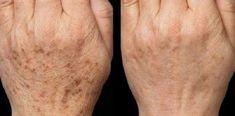 Age Spot Corrector - Age Spot Cream - Age Spot Lotion - Dark Spot Cream - Liver Spot Cream - Green Tea - Skin Lightener - No Bleach Formula Skin Care Regimen, Skin Care Tips, Age Spot Cream, Age Spots On Face, Remover Manchas, Tips Belleza, Skin Brightening, Body Butter, Good Skin