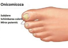 Bilimsel adı onikomikoz olan tırnak mantarı tırnağın renk ve kalınlığı… The nail fungus, whose scientific name is onychomycosis, affects the appearance of the nail by changing its color and thickness. Doterra, Image Nails, Ingrown Toe Nail, Nail Plate, Gel Designs, Fungal Infection, Nail Fungus, Healthy Nails, Artificial Nails
