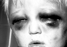 child abuse and neglect - STOP THIS