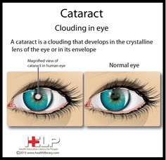 Cataract information. #visiontogive