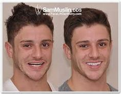 http://www.faceliftdentistry.com  The world doesn't end with braces, there's a lot more that is ruling the market these days - Overbite Correction without braces procedure by Dr. Sam Muslin can be the answer.  #OverbiteCorrectionwithoutbraces