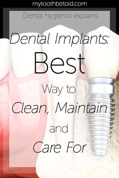 Explained by a dental hygienist. Everything I discuss with my own patients who have dental implants or about to get dental implants. How to clean, maintain and care for them. Prevent gum disease and prevent implant failure!