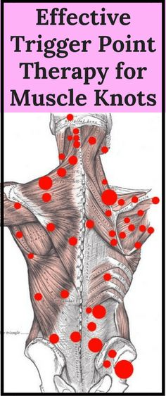 Effective Trigger Point Therapy for Muscle Knots - Workout Hit