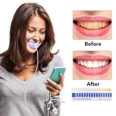 Teeth Whitening Kit Blue Light Dental Whitening Gel 16 LEDs Whiter Teeth Tooth Whitening Pens Dropship Teeth Bleaching System on AliExpress Teeth Whitening System, Best Teeth Whitening, Whitening Kit, Tooth Sensitivity, Teeth Bleaching, Stained Teeth, Dental Teeth, White Teeth, Health And Beauty