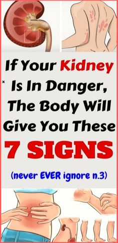 If Your Kidney Is in Danger, the Body Will Give You These 7 Signs! – For your health, the kidneys are essential because they detoxify and cleanse the body by filtering quarts of blood in a day. Group Boards, Colorado Rockies, Good To Know, Just In Case, Cleanse, Yoga Poses, The Help, Summer Vibes, Have Fun