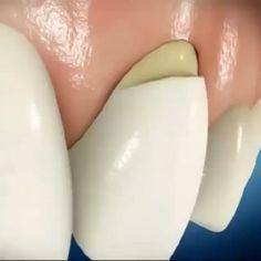 """53 Me gusta, 4 comentarios - Centro Odontológico Recoleta (@odontologiacor) en Instagram: """"Lesiones cervicales no cariosas, patología dental del futuro asociada al bruxismo⚠.. Donde la…"""""""