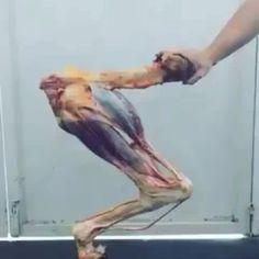 La perfección de la anatomía: flexión y extensión del miembro pelviano equino. Por ser un animal categorizado como un atleta de alto rendimiento sus miembros son la base de sustentacion de su capacidad deportiva. Es increíble poder observar en detalle la interacción de cada uno de los componentes del sistema musculoesquelético de un animal tan altamente especializado, que a pesar de ser diseñado para trabajos forzados, presenta alta incidencia de patologías de este sistema, por sobre…