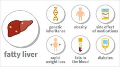 Type 2 diabetes, high blood pressure, obesity, and a large waistline all raise the risk of this common liver disease, which in turn raises the risk of cardiovascular disease. Losing weight is the best way to reverse or slow the progression of NAFLD. Ketoacidosis Diet, Diabetic Ketoacidosis, Liver Diet, Healthy Liver, Fatty Liver Treatment, What Causes Diabetes, Diabetes In Children, Diet Plan Menu