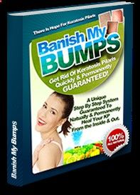 Banish My Bumps Is Editors Pick as KP Improvised Home Remedy