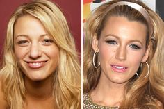 Blake Lively ($7,300)....Sporting an obvious rhinoplasty as well as laser skin treatments to lighten and mask her freckles and blemishes, Lively initially denied having any work done (yeah, right!) but eventually fessed up to the truth. Aside from having her nose thinned and reshaped, the 26-year-old star also had eye surgery that was more than just about correcting her vision.