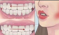 ¿Tus dientes rechinan de noche? ¡Esto es lo que debes hacer!