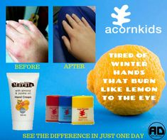 For a full product brochure contact me on: WhattsApp 079 377 9691 or visit www.acornkids.com/learningfun  Affiliate code: learningfun should you want to register as a customer or a dealer online 😉 xx 🌴 Acorn Kids, Product Brochure, Hand Cream, Jojoba Oil, Fun Learning, Burns, Coding, How To Make, Programming