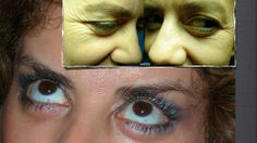 BLEPHAROPLASTY PLUS WHOLE AESTHETIC PLASTIC SURGERY OF THE FACE AND FAT INJECTIONS. WWW.LLLPLASTICSURGERY.COM https://onedrive.live.com/view.aspx?resid=60C004E312681E76!144&app=PowerPoint