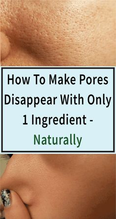 3 Days and All Pores Will Disappear From Your Skin Forever Pores In Your Skin Closing Pores In Your Face Clean Pores bad Pores Shrink Pores Make Pores Smaller Larg. Big Pores On Face, Large Pores On Nose, Face Skin, Good Skin Tips, Skin Care Tips, Make Pores Smaller, Beauty Care, Beauty Skin, Face Beauty