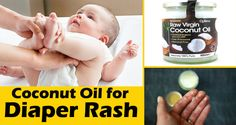 5 Simple Ways to Use Coconut Oil for Diaper Rash