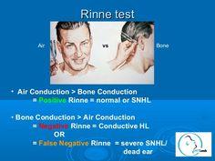 rinne and weber test mnemonic Examen Clinique, Pedi, Interesting Stuff, Nursing, Positivity, Google Search, School