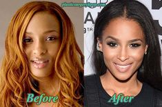 ciara-plastic-surgery-before-after-nose-job-breast-implants-pictures