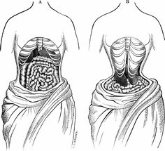 """Talk about taking appearance to extremes!  In the 18th - 19th century, it was fashionable to either surgically remove smaller rib bones or crush the waistline into an impossibly small size in order to achieve a """"waspish"""" waist.  Incredibly dumb!"""