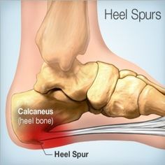 Natural Cure For Heel Spurs - How To Cure For Heel Spurs Naturally | Find Home Remedy