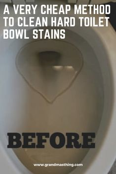 When it comes to stubborn toilet bowl stains, it's a total nightmare when it's deep cleaning day because no matter how much scrubbing you do, there are no obvious results. cleaning tips Bathroom Cleaning Hacks, Cleaning Day, Household Cleaning Tips, Toilet Cleaning, Deep Cleaning, Household Items, Toilet Bowl Stains, Best Frends