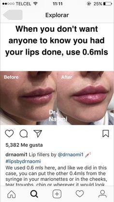 96 Best S U R G E R Y Images In 2019 Beleza Botox Fillers