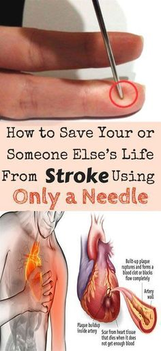 HERE'S HOW TO SAVE YOUR OR SOMEONE ELSE'S LIFE FROM STROKE USING ONLY A NEEDLE – Real Health