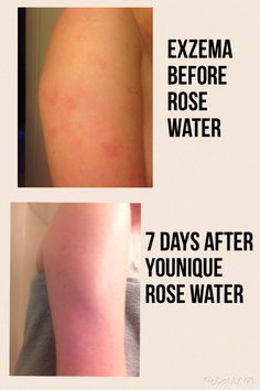Younique's rose water works wonders on redness and Eczema!
