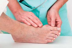 """[Foot Fix] In cultures where footwear is rare, so are bunions. """"Going barefoot is the best way to encourage healthy feet,"""" says board-certified podiatrist Dr. Michael Horwitz of Feet for Life Podiatry Centers. Bunions, however, almost always stem from genetic factors, Horwitz notes, but may be exacerbated by wearing the wrong type of shoe. That fact contributes to the common misconception that shoes cause the condition. #health #healthtips #townandstyle"""