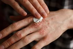 Psoriasis is a condition in which skin cells build up and form scales and itchy, dry patches and it is important to be aware of it. Here are the most common questions about psoriasis answered for you. Copaiba Oil, Copaiba Essential Oil, Therapeutic Grade Essential Oils, Essential Oils For Migraines, Eczema Relief, Itch Relief, Insomnia Remedies, Eczema Psoriasis, Autoimmune Disease