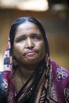 """Nurbanu, Bangladeshi Woman, Forced To Return To Husband After Acid Attack  """"Most of the women and girls I support were attacked by men who viewed them as commodities and therefore believed they were justified in disfiguring them and violating their rights,"""" Monira Rahman, CEO of the Acid Survivors Association in Bangladesh, writes. Islam Women, Sharia Law, My Heart Is Breaking, Domestic Violence, Husband, Religion, God, Pale Horse, Politics"""
