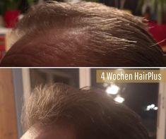 """Uns erreichen schon die ersten Ergebnisse: """"Ich bin schlichtweg begeistert! Nach kurzer Zeit habe ich bereits einen Unterschied bemerkt. Meine Haare fühlen sich einfach kräftiger an und vor allem die dünneren Haare sind jetzt nach bereits 4 Wochen viel stärker geworden. Auch wenn ich am Anfang etwas skeptisch war, kann ich jedem der seinen Haaren etwas gutes tun möchte HairPlus nur empfehlen!"""" ⭐️ Medical, Concept, Beauty, Dry Scalp, Hair Roots, Soft Hair, Thin Hair, Wash Hair, Stop Hair Loss"""